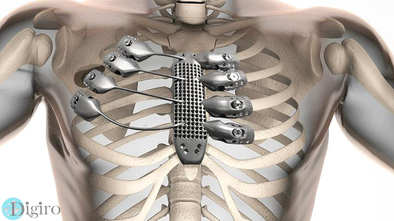 3d-printed-sternum-illustration
