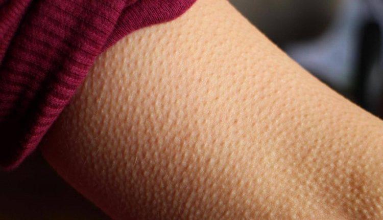 اگر هنگام گوش دادن موسیقی موهای تنتان سیخ میشود بخوانید!