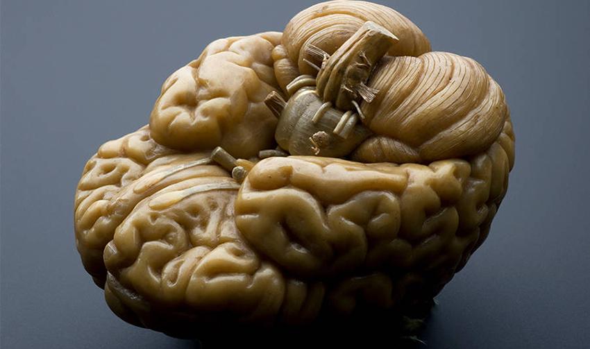 مغز انسان می تواند به مدت 5 تا 10 دقیقه بدون اکسیژن زنده بماند.