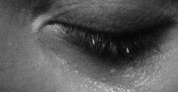 جمع شدن اشک دور کره چشم