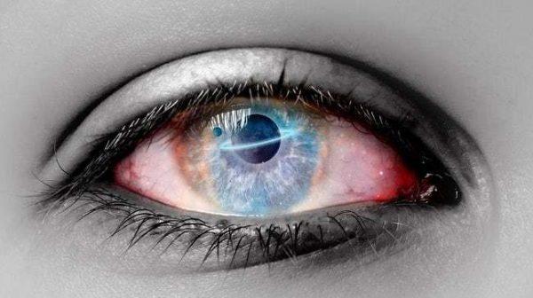یکی از اثرات سفر طولانی به فضا تغییر کره چشم و نزدیکبینی است