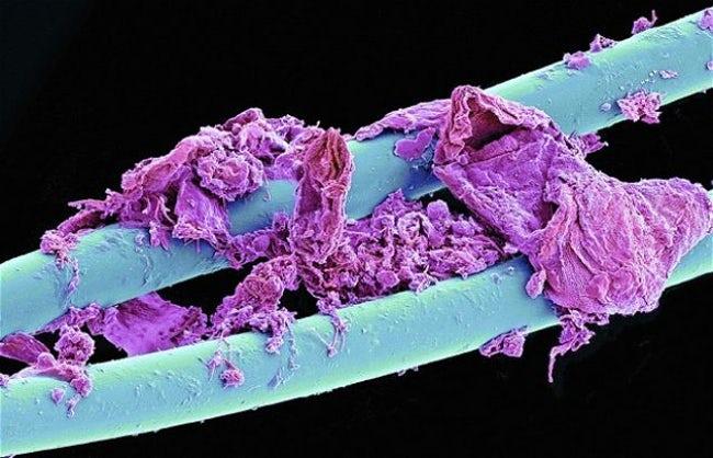 تصاویر شگفت انگیز و جالبی که توسط میکروسکوپها شکار شدهاند